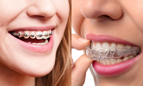 The Difference Between Braces & Clear Aligners | Sala ...